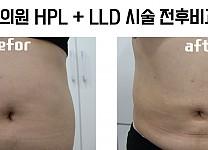 수메디의원 HPL +LLD 시술 +비만약물치료  12주